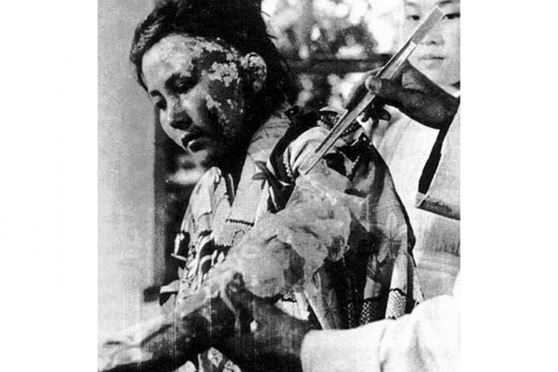 Poparzona kobieta z Hiroszimy, fot. Shunkichi Kikuchi