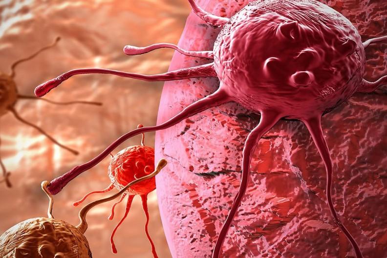 Komórki w ludzkim organizmie atakowane przez nowotwór. Fot.: Destroyer of furries/Wiki Commons